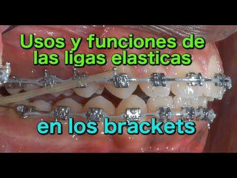 Uso De Los Elásticos En Ortodoncia Fija Youtube Ortodoncia Odontología Salud Dental