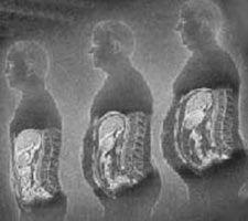 When gluten intolerance causes weight gain