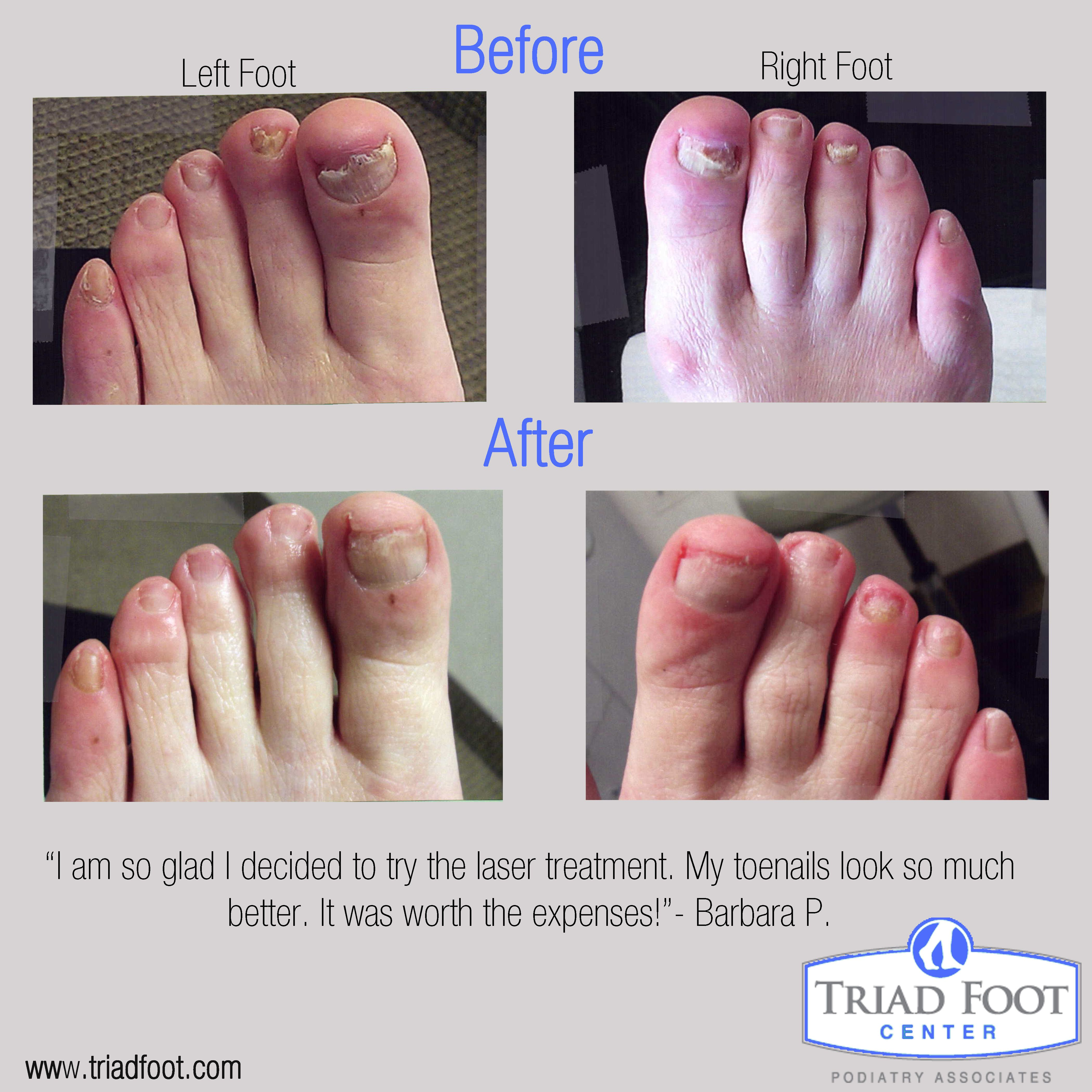 Laser Treatment works for nail fungus Just ask our patients