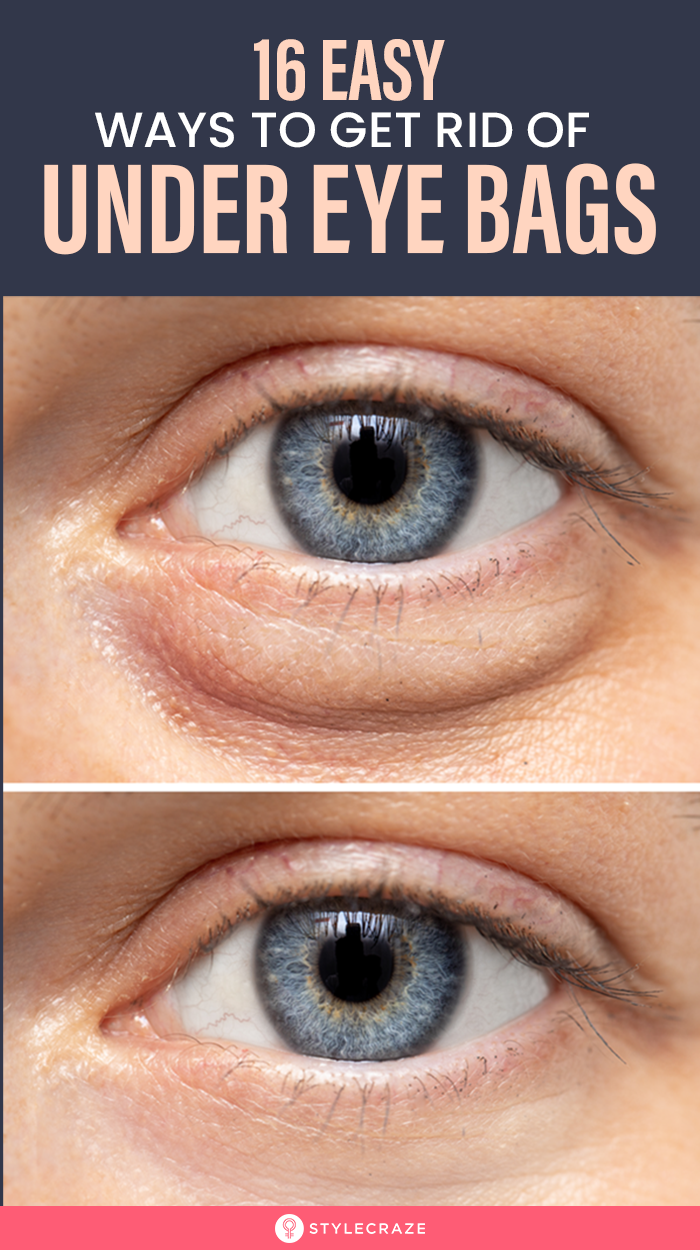 Top 16 Home Remedies To Get Rid Of Eye Bags -   25 how to get rid of bags under eyes ideas