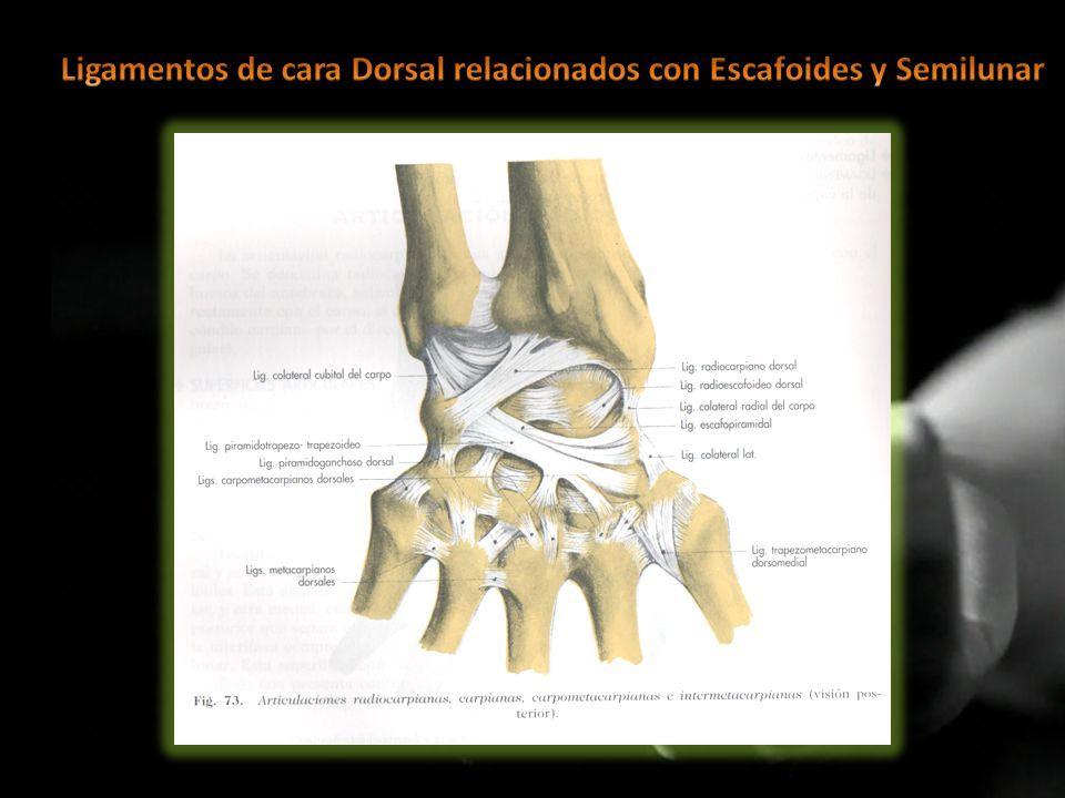 Resultado de imagen de ligamento escafosemilunar | muñeca | Pinterest