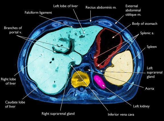 liver anatomy ct | Radiology | Pinterest | Anatomía, Radiología y ...