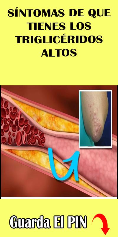 Sintomas los trigliceridos altos