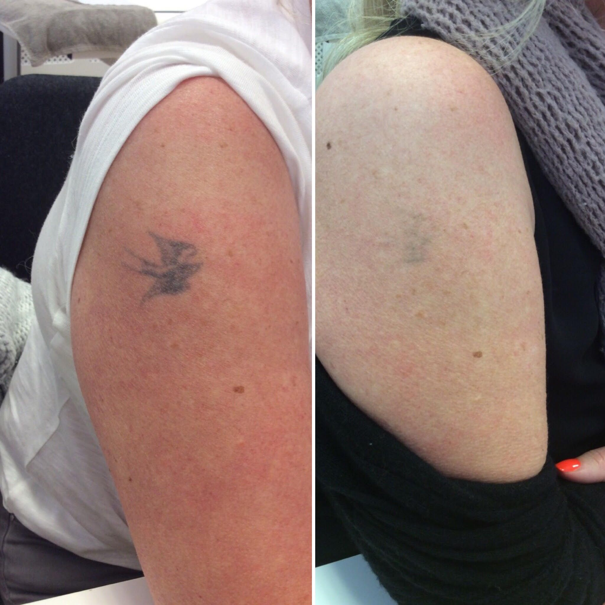 Almost Gone With 1 Session Of The Picosure Laser Tattoo Fading Depends On A Number Of Factors Location Of Th Laser Tattoo Removal Laser Tattoo Tattoo Removal