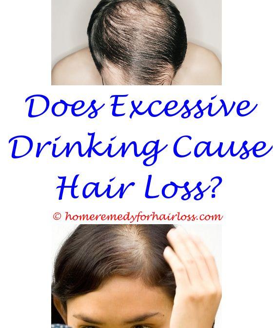 Causes Of Thinning Hair | Loreal shampoo and Hair loss