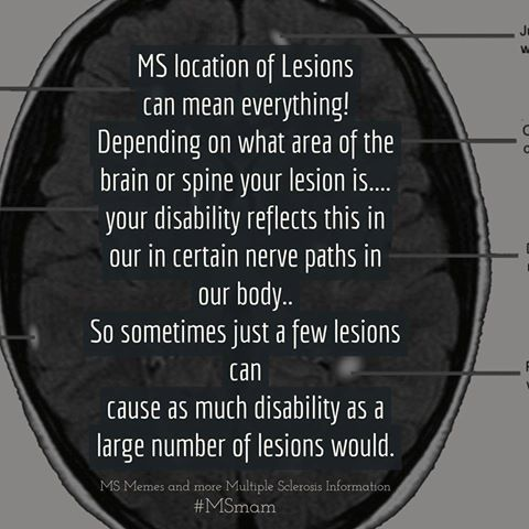 5944e52773c722f80f077be5fa5a76ef ms multiple sclerosis the location of lesions can mean,Multiple Sclerosis Memes