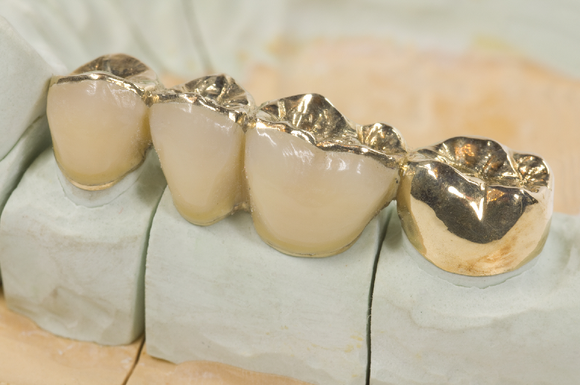 What Is The Difference Between Inlay Onlay Overlay And Pinlay News Dental Crowns Dental Dental Ceramics