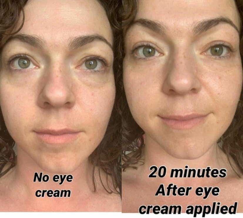 Younique Eye Cream Reduce Dark Circles Younique Marketing Younique