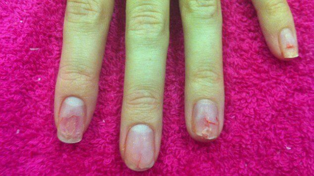 8 Great Tips To Repair Nails After Acrylics Nails After Acrylics Bad Nails Nail Repair