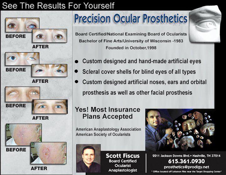 Ad Design Examples - Precision Ocular Prosthetics Image Marketing Pros 615-200-7717 Nashville 865-291-0373 Knoxville