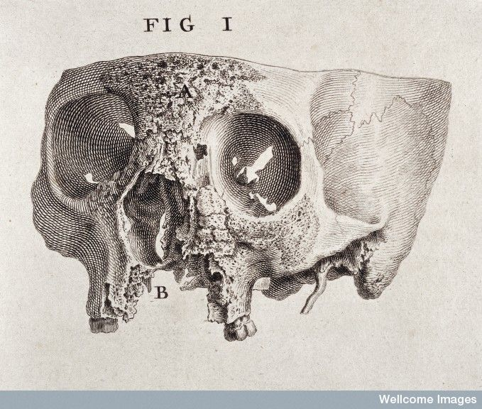 Engraving showing the diseased part of a skull