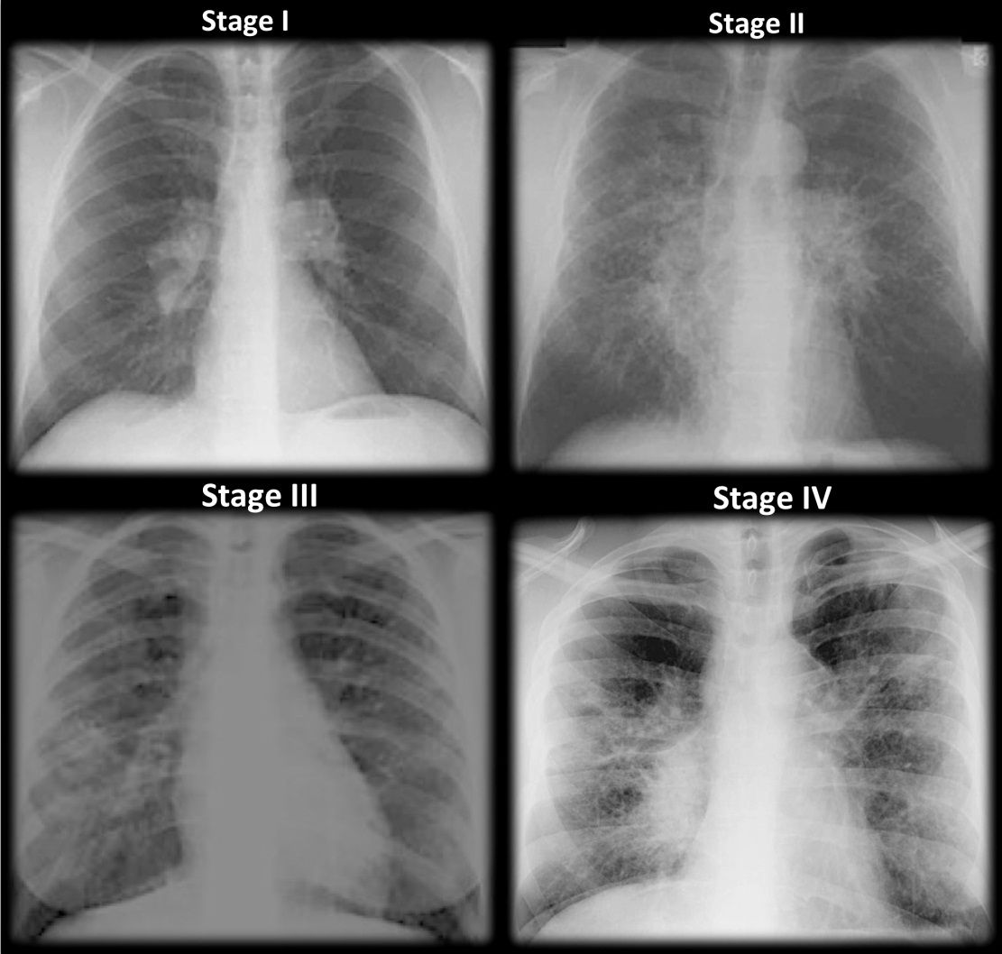 Four Stages Of Sarcoidosis Figure 1 Staging Of