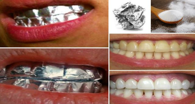 Do You Know What Will Happen If You Wrap Your Teeth With Aluminum