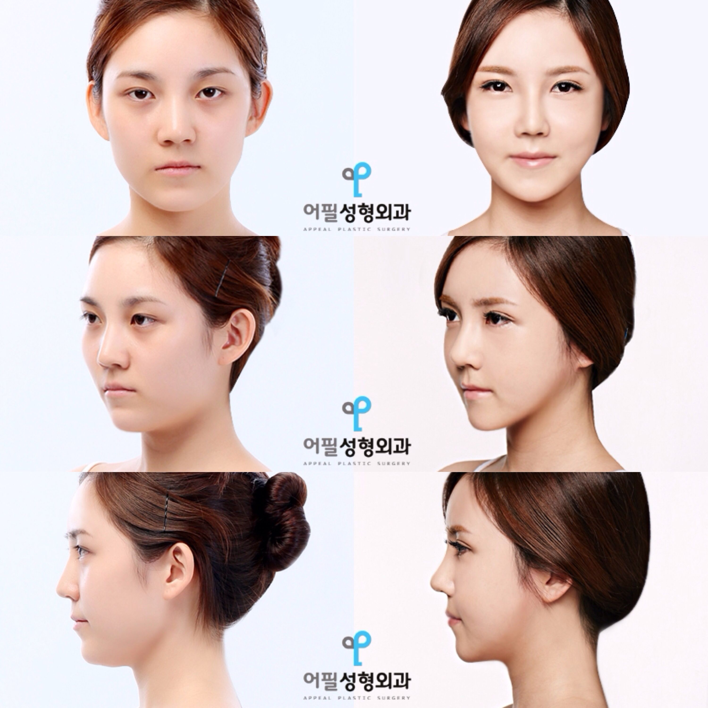 Asian Jaw Shaving 114