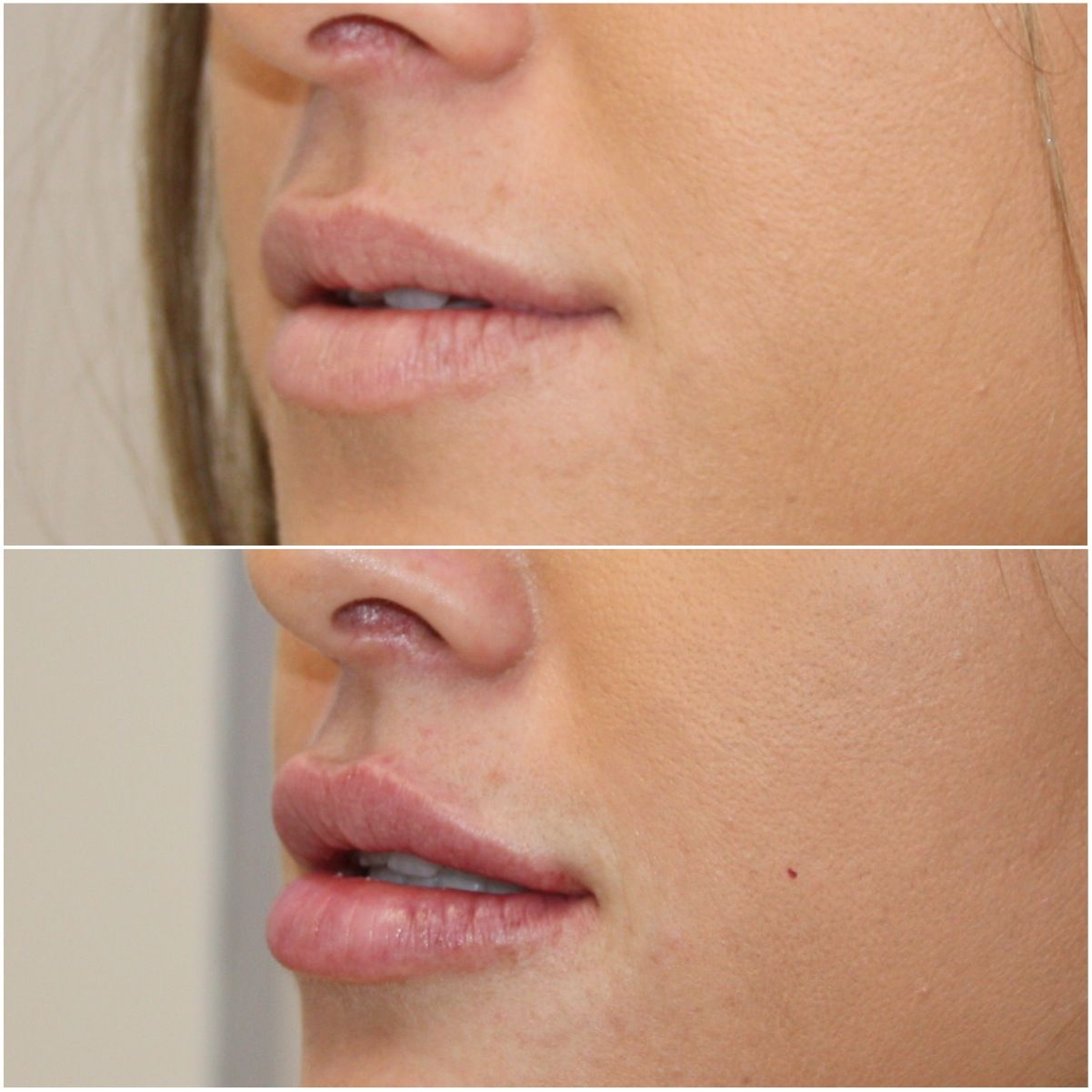dermal fillers in london before_and_afterface_1 Dermal