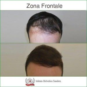 istituto helvetico sanders autotrapianto risultati  rinfoltimento della  zona frontale mediante trapianto di capelli con tecnica e805321ebf1e