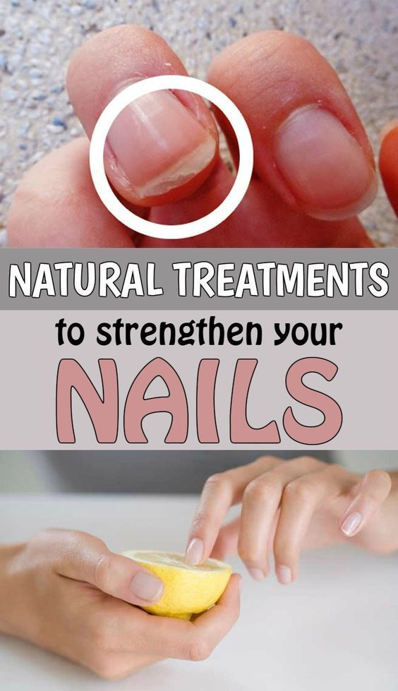 Natural Treatments To Strengthen Your Nails Tautymania