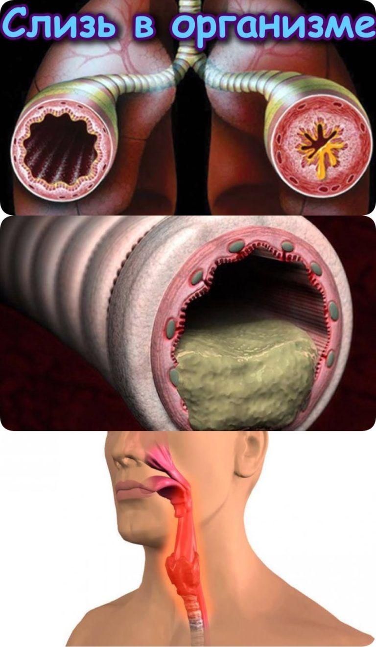 Медикменти против артрит