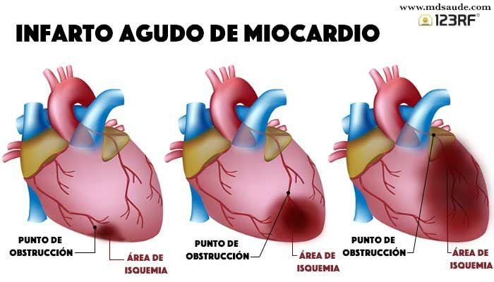 infarto agudo del miocardio | Anatomía | Pinterest | Agudas ...