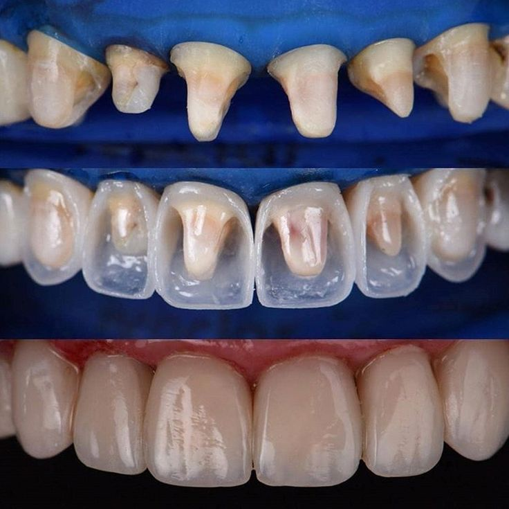 Building Up Teeth With Composite An Alternative To Veneers And Crowns In The Aesthetic Anterior Area Cosmeticdentistry Dentistry Dental Restoration Dental