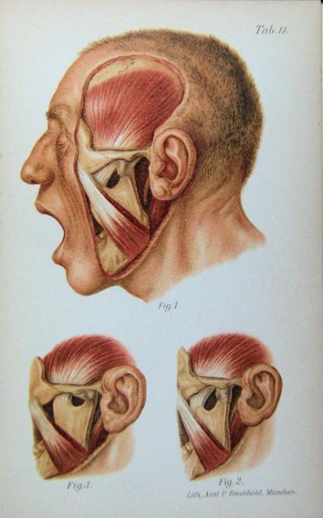 Anterior Dislocation Of The Lower Jaw