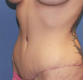 After tummy tuck surgery the skin is much tighter and most of the