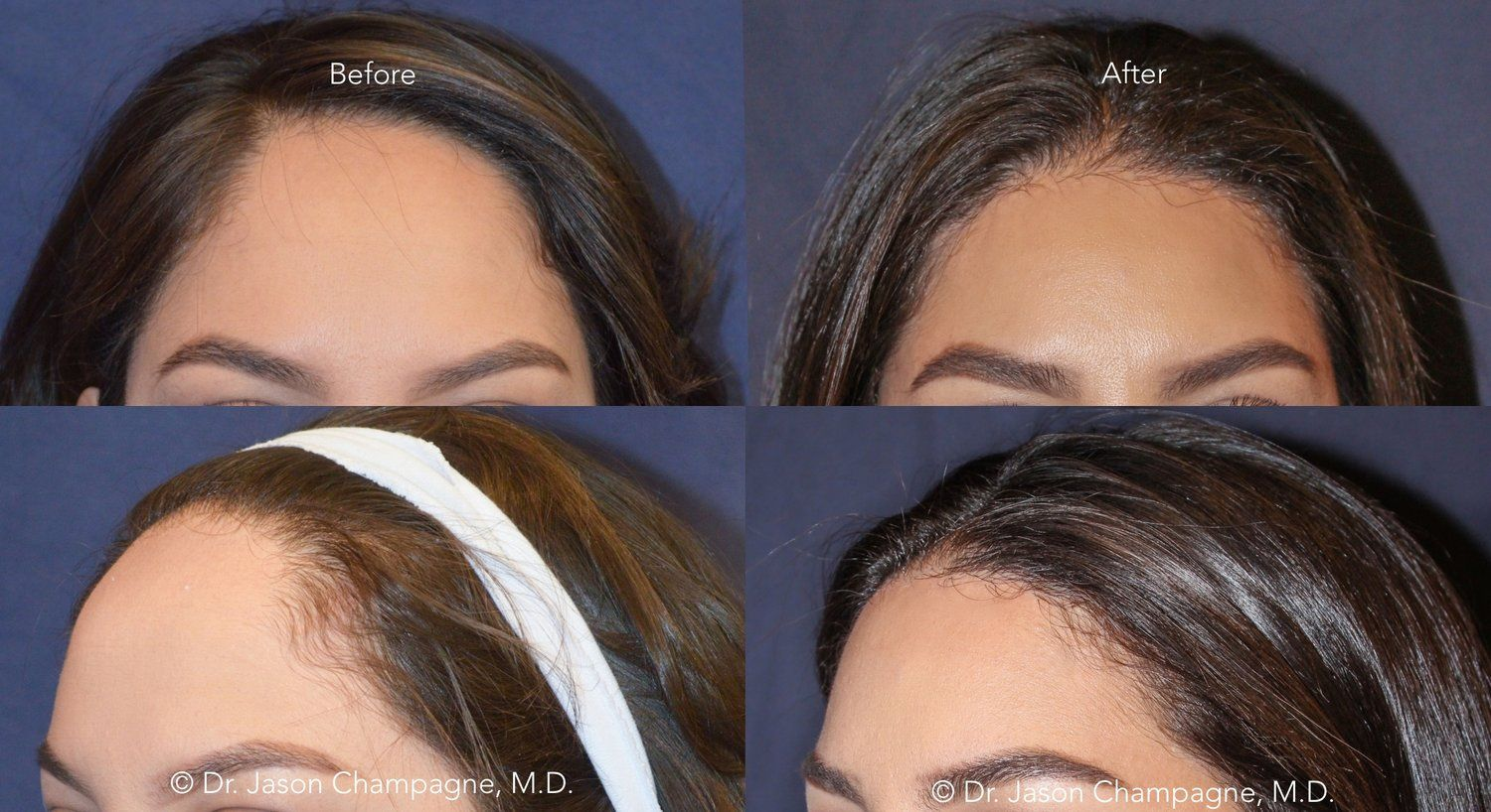 Dr Jason Champagne Hairline Lowering Before And After Forehead Reduction Surgery Hairline Forehead Reduction