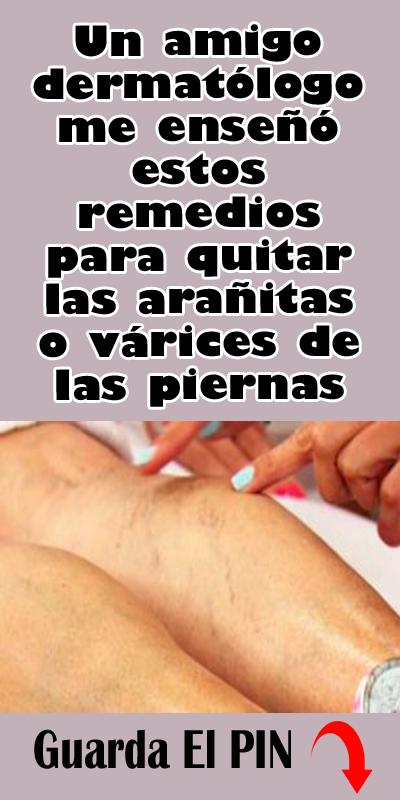 Un Amigo Dermatólogo Me Enseñó Estos Remedios Para Quitar Las Arañitas O Várices De Las Piernas Health Fitness Health Body
