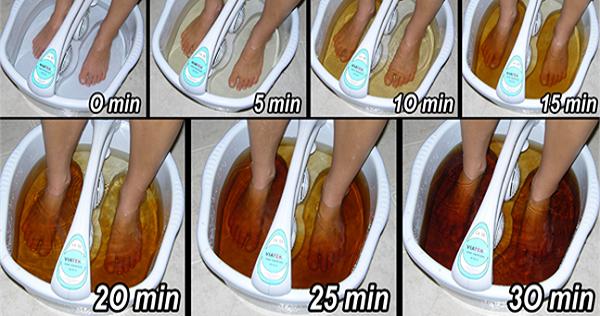 voici comment d toxifier votre organisme par les pieds en seulement 30 minutes ce qui est