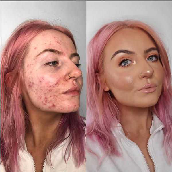 This Foundation Is Going Viral After Cystic Acne Sufferer Shares Her Insane Before And After Pics Acne Makeup Hair Styles Beauty