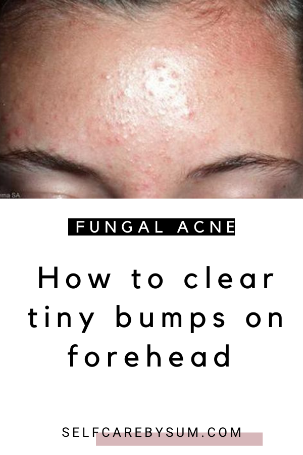 59a016b3c5a75d8b80bb0a288a6e04d4 - How To Get Rid Of Little Red Bumps On Forehead