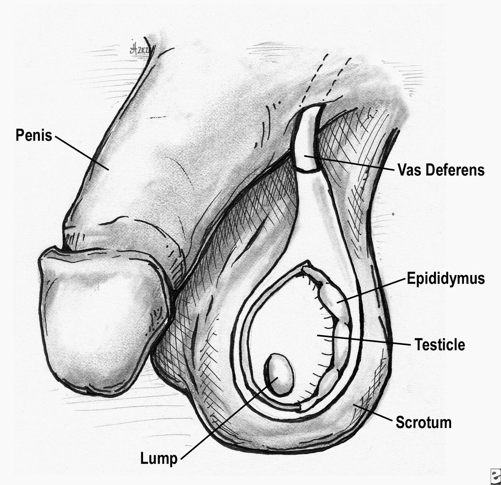 Dealing With Scrotal and Testicular Problems