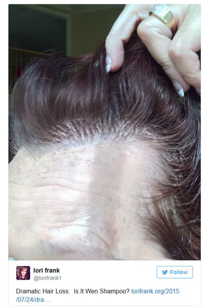 Twitter User Demonstrates Hair Loss Which She Thinks May Be From