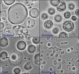 Toxoplazmózis – Wikipédia
