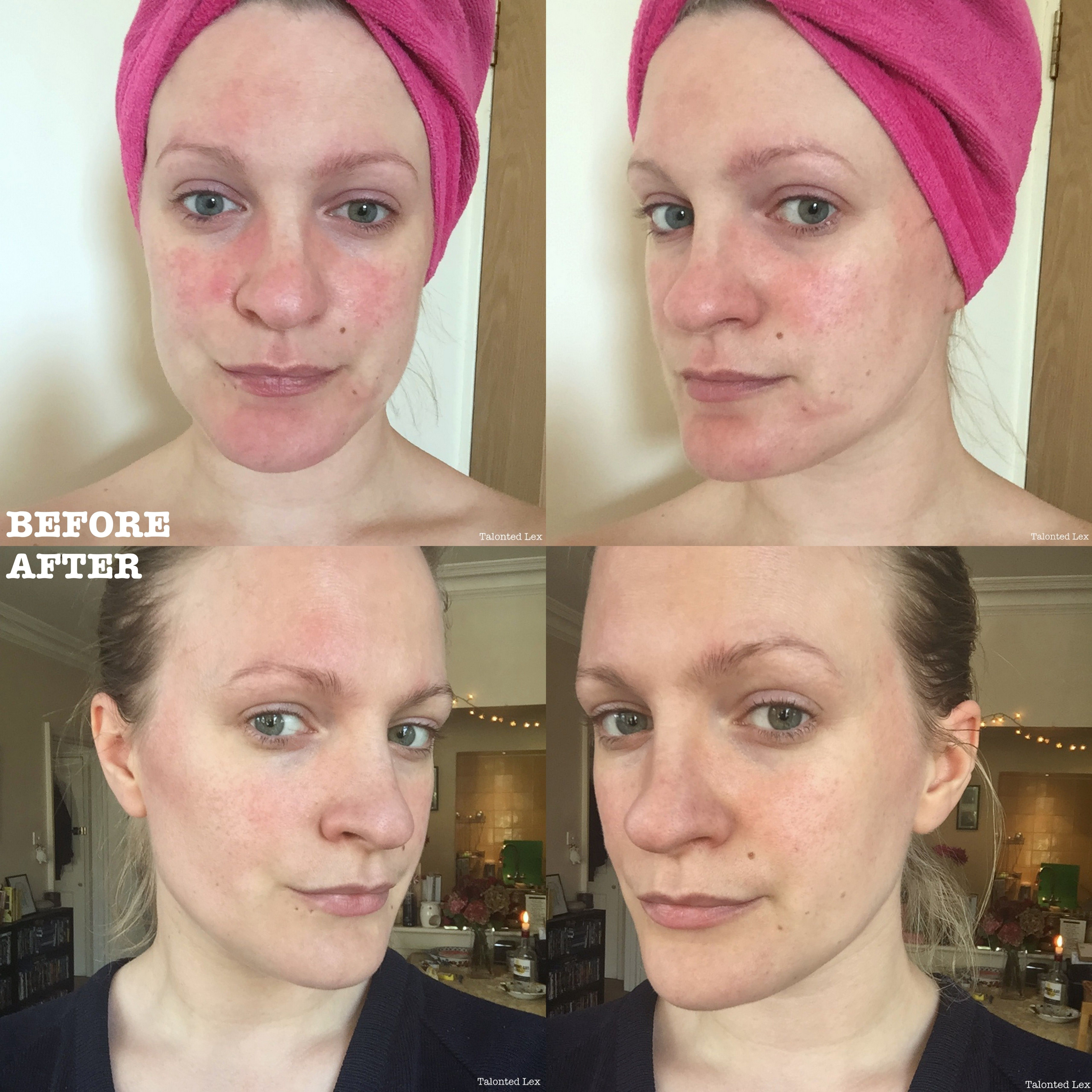 SEQuaderma Treatment For Rosacea And Facial Redness AD  talonted lex is part of Rosacea treatment - SEQuaderma Treatment For Rosacea And Facial Redness RosaceaReview  Want to see my before and after pics when trying this rosacea product