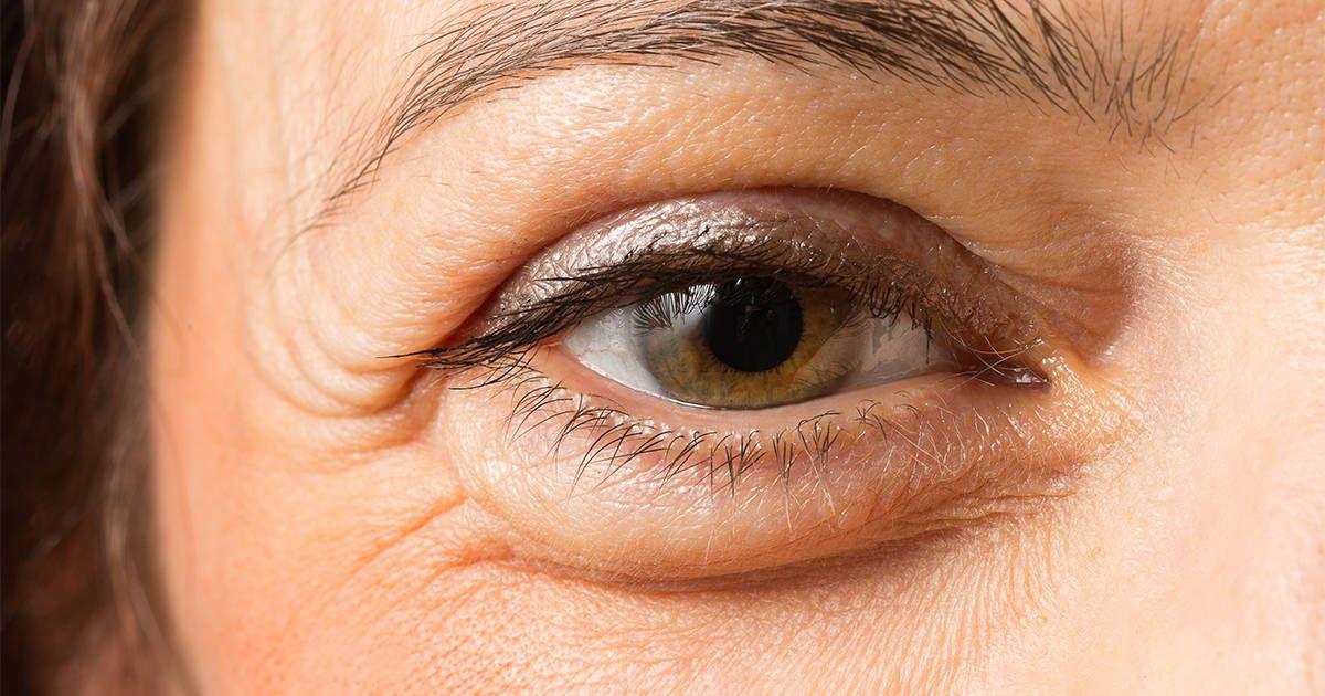Cómo Desinflamar Los Párpados Hinchados Y Eliminar Las Ojeras Hinchazón Debajo De Los Ojos Ojos Hinchados Bolsas De Ojos