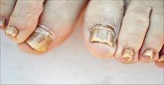 La infección por hongos en las uñas, o la onicomicosis, es la alteración de las uñas más común y es responsable de alrededor del 50 por ciento de todas las infecciones de las uñas. Pero ¿qué ocasiona los hongos en las uñas? Como su nombre indica, la enfermedad está causada por hongos – diminutos organismos …