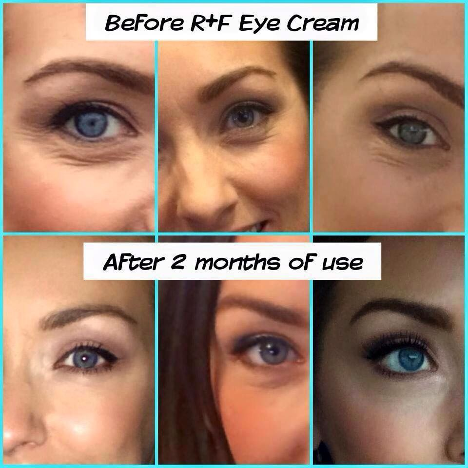 Omg Best Eye Cream Ever Rodan Fields Redefine