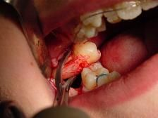Extraction tooth Oral cost surgery