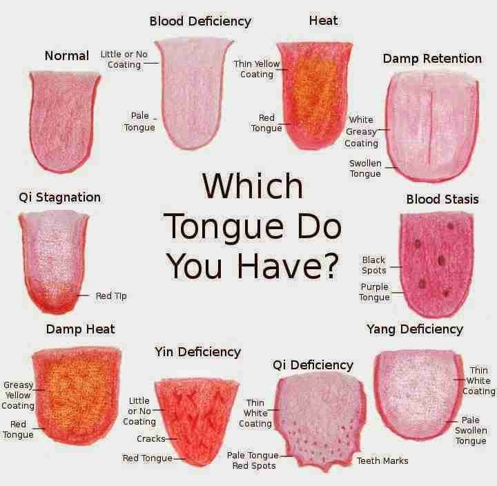 What The Color Of Your Tongue Says About Your Health Problems