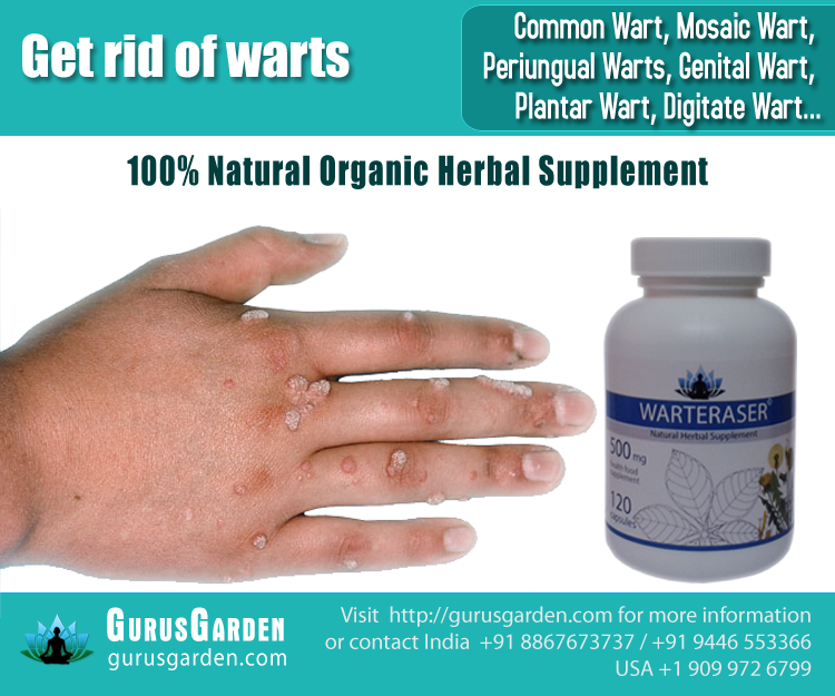 how to get rid of mosaic warts