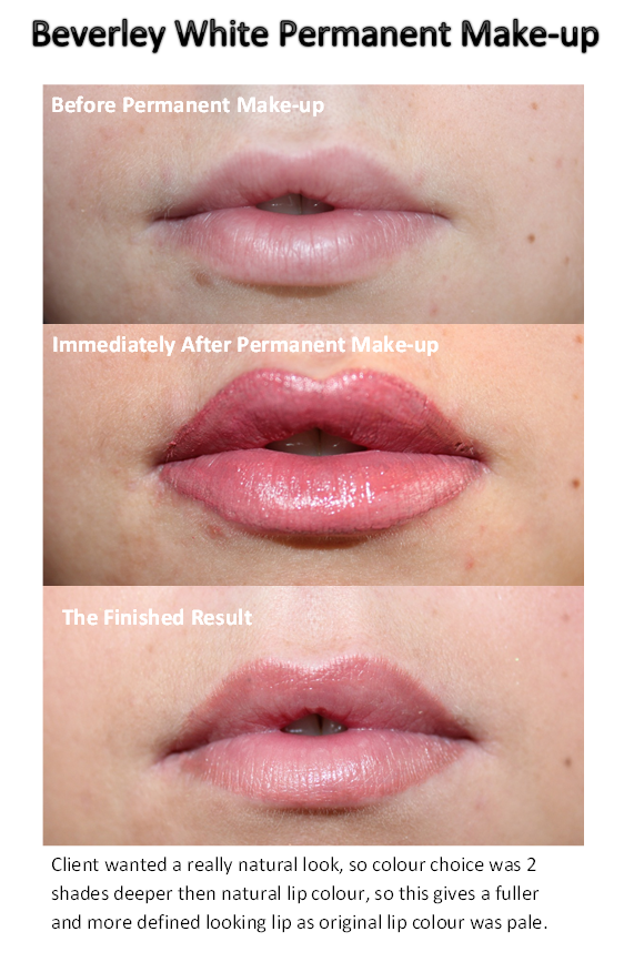 Permanent lip tattoo before after the art of beauty for Lip tattoo fade