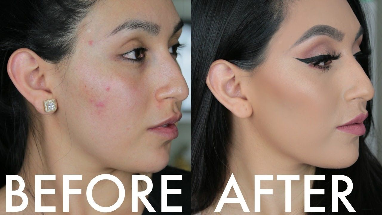 HOW TO COVER PIMPLES, UNDER EYE CIRCLES & BRUISES