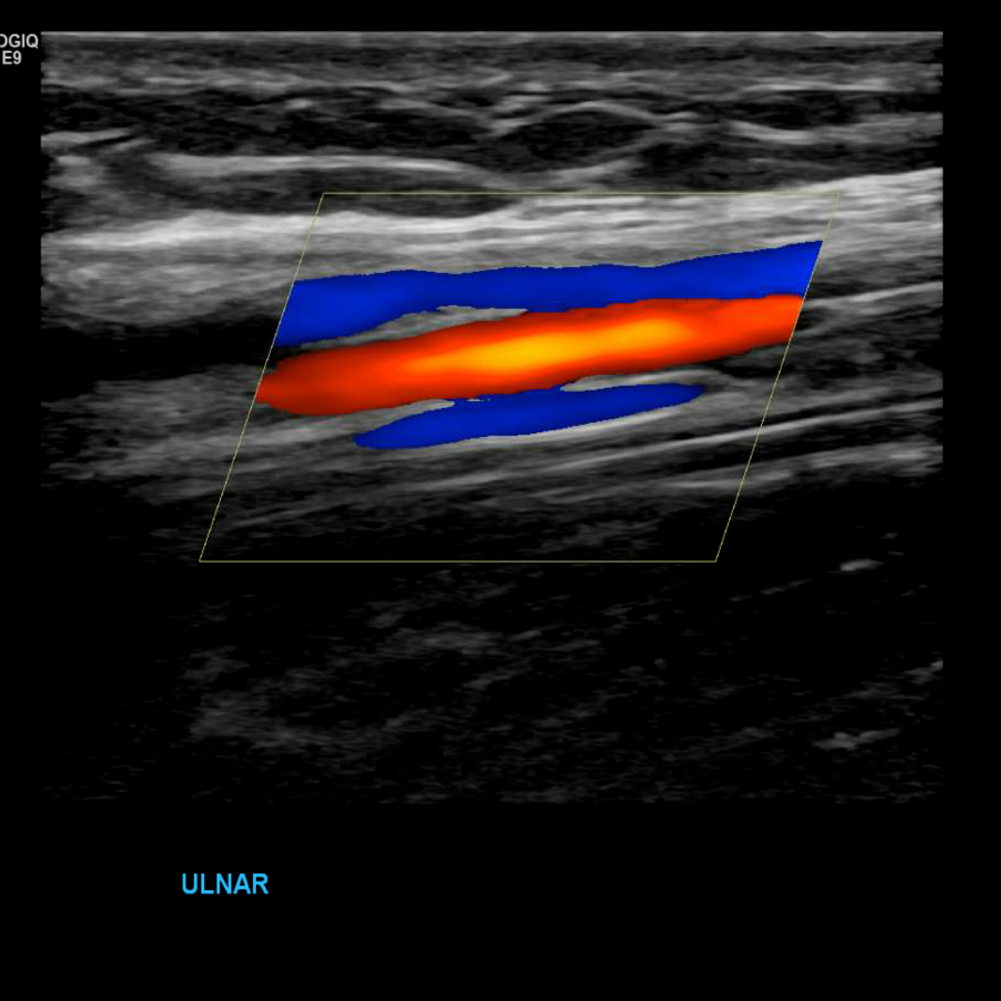 Upper Extremity Venous Doppler In With Images