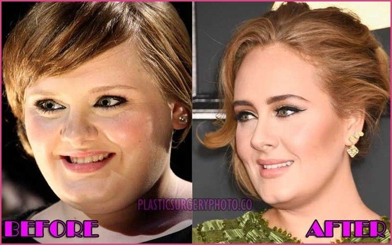 Adele Nose Job Before And After Exclusive Review By Plastic Surgeon