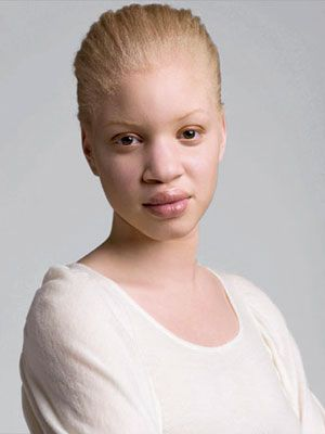 In less pigmented types of albinism, hair and skin are cream-colored and vision is often in the range of 20/200.