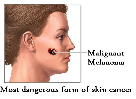melanoma skin cancer pictures - Yahoo Image Search Results ...