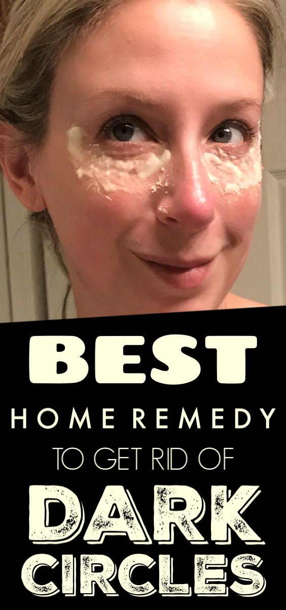 10 Top Home Remedies for Dark Circles Under Eyes Dark