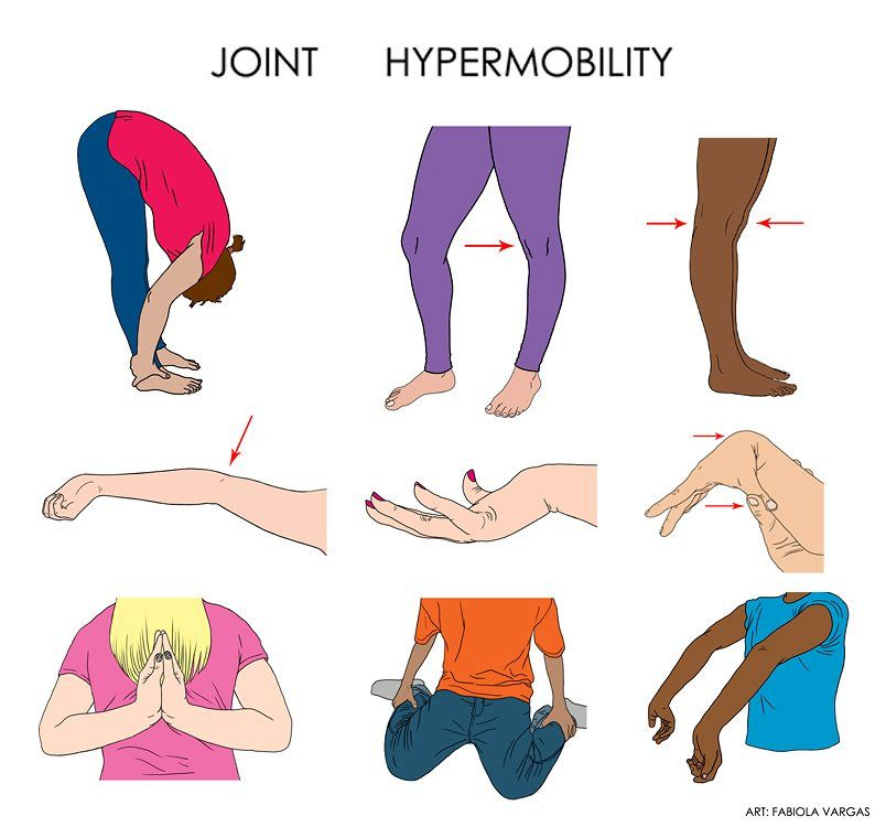 Image result for joint hypermobility syndrome