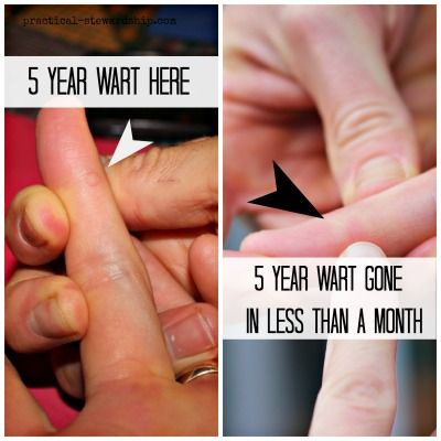 warts on hands how to remove)